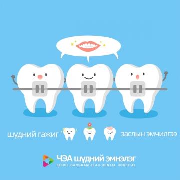 шүдний гажиг заслын эмчилгээ